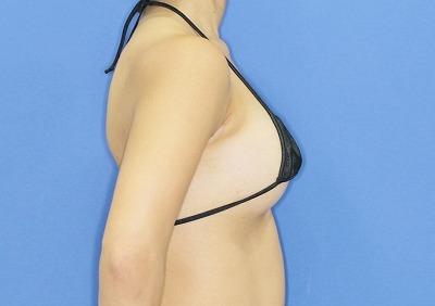 新宿ラクル美容外科クリニック 山本厚志 「Motiva(モティバ)エルゴノミクス」豊胸術 手術直後