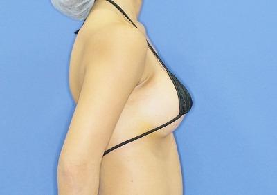 新宿ラクル美容外科クリニック 山本厚志 「Motiva(モティバ)エルゴノミクス」豊胸術 手術後1週間目