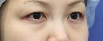 新宿ラクル美容外科クリニック 山本厚志 「切らない目の下のたるみ取り」 リデンシティⅡ 手術前