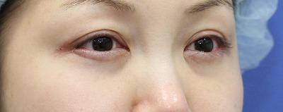 新宿ラクル美容外科クリニック 山本厚志 「切らない目の下のたるみ取り」 リデンシティⅡ 手術直後