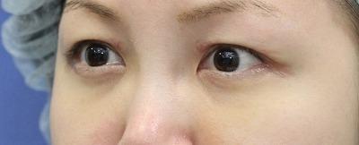 新宿ラクル美容外科クリニック 山本厚志 「切らない目の下のたるみ取り」 リデンシティⅡ 手術後1週間目