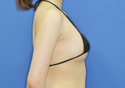 新宿ラクル美容外科クリニック 山本厚志 「アクアフィリング(AQUA filling)注入豊胸」 手術後12ヶ月目