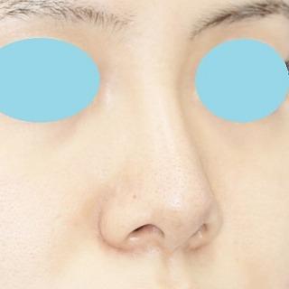 新宿ラクル美容外科クリニック 山本厚志 n-COG Y-ko(ワイコ) 手術後1ヶ月目