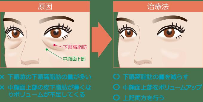 新宿ラクル美容外科クリニック 山本厚志 「切らない目の下のたるみ取り」 リデンシティⅡ