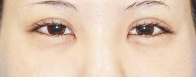 新宿ラクル美容外科クリニック 山本厚志 「切らない眼瞼下垂」 手術前