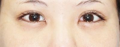 新宿ラクル美容外科クリニック 山本厚志 「切らない眼瞼下垂」 手術直後