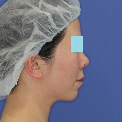新宿ラクル美容外科クリニック 山本厚志 「ミントリフトⅡminiS flex(シークレットリフト)」手術後1ヶ月目