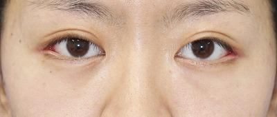 新宿ラクル美容外科クリニック 山本厚志 「目尻切開」 手術後1週間目