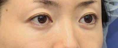 新宿ラクル美容外科クリニック 山本厚志 「切らない目の下のたるみ取り + リデンシティⅡ(目の下)」 手術後1ヶ月目
