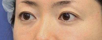 新宿ラクル美容外科クリニック 山本厚志 「切らない目の下のたるみ取り + リデンシティⅡ(目の下)」 手術後3ヶ月目