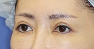 新宿ラクル美容外科クリニック 山本厚志 「眉下切開法」 手術後1ヶ月目