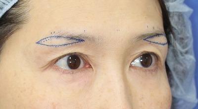 新宿ラクル美容外科クリニック 山本厚志 「眉下切開法」 手術前デザイン