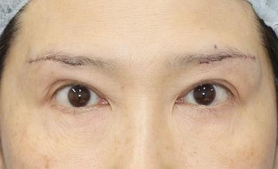 新宿ラクル美容外科クリニック 山本厚志 「眉下切開法」 手術直後