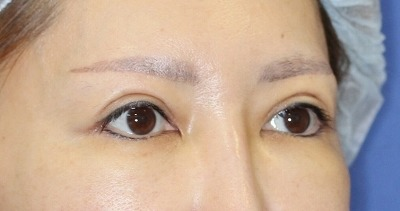 新宿ラクル美容外科クリニック 山本厚志 「眉下切開法」 手術後3ヶ月目