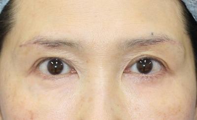 新宿ラクル美容外科クリニック 山本厚志 「眉下切開法」 手術後1週間目