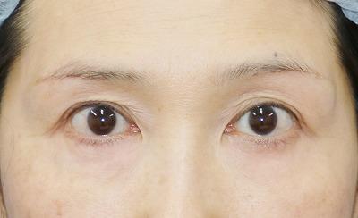 新宿ラクル美容外科クリニック 山本厚志 「眉下切開法」 手術後2ヶ月目