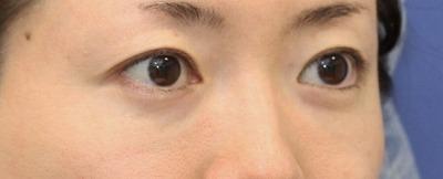 新宿ラクル美容外科クリニック 山本厚志 「切らない目の下のたるみ取り + リデンシティⅡ(目の下)」 手術後6ヶ月目
