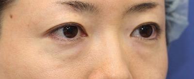 新宿ラクル美容外科クリニック 山本厚志 「切らない目の下のたるみ取り + リデンシティⅡ(目の下)」 手術前