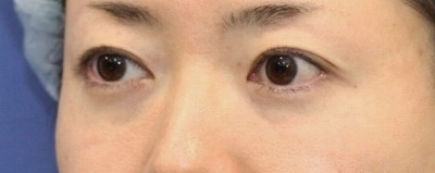 新宿ラクル美容外科クリニック 山本厚志 「切らない目の下のたるみ取り + リデンシティⅡ(目の下)」 手術直後