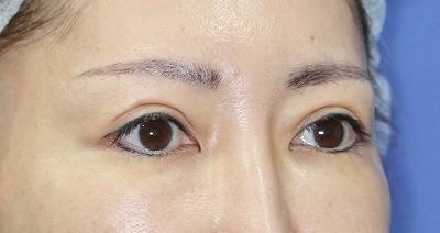 新宿ラクル美容外科クリニック 山本厚志 「眉下切開法」 手術後12ヶ月目