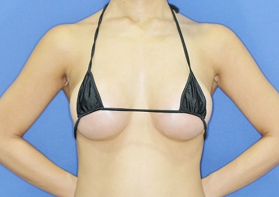 新宿ラクル美容外科クリニック 山本厚志 「Motiva(モティバ)エルゴノミクス」豊胸術 手術後1ヶ月目