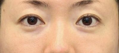 新宿ラクル美容外科クリニック 山本厚志 「切らない目の下のたるみ取り + リデンシティⅡ(目の下)」 手術後2ヶ月目