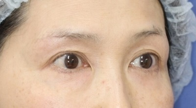 新宿ラクル美容外科クリニック 山本厚志 「眉下切開法」 手術後6ヶ月目