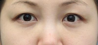 新宿ラクル美容外科クリニック 山本厚志 「切らない目の下のたるみ取り」 リデンシティⅡ 手術後2ヶ月目