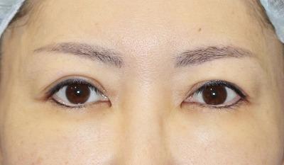 新宿ラクル美容外科クリニック 山本厚志 「眉下切開法」 手術前