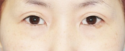新宿ラクル美容外科クリニック 山本厚志 「埋没法二重術(エクセレントアイ)+目の上の脂肪取り(マイクロカット法)」 手術後6ヶ月目