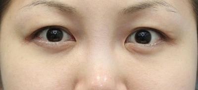 新宿ラクル美容外科クリニック 山本厚志 「切らない目の下のたるみ取り」 リデンシティⅡ 手術後1ヶ月目