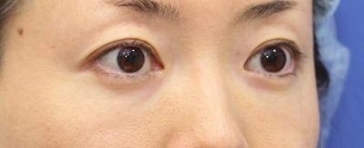 新宿ラクル美容外科クリニック 山本厚志 「切らない目の下のたるみ取り + リデンシティⅡ(目の下)」 手術後12ヶ月目