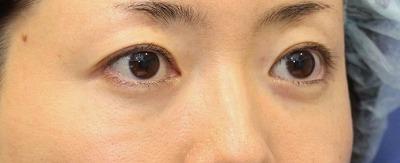 新宿ラクル美容外科クリニック 山本厚志 「切らない目の下のたるみ取り + リデンシティⅡ(目の下)」 手術後1週間目