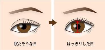 新宿ラクル美容外科クリニック 山本厚志 「切らない眼瞼下垂」