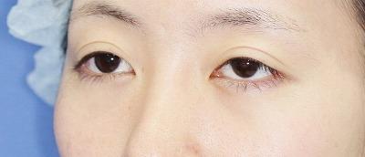 新宿ラクル美容外科クリニック 山本厚志 切らない眼瞼下垂 目尻切開 手術前