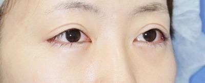 新宿ラクル美容外科クリニック 山本厚志 切らない眼瞼下垂 目尻切開 手術直後