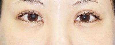 新宿ラクル美容外科クリニック 山本厚志 「切らない眼瞼下垂」 手術後1週間目
