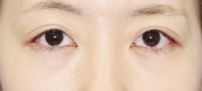 新宿ラクル美容外科クリニック 山本厚志 切らない眼瞼下垂 目尻切開 手術後1週間目