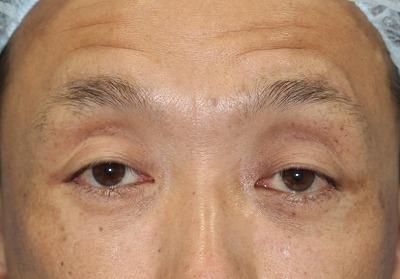 新宿ラクル美容外科クリニック 山本厚志 眉下切開法 手術前