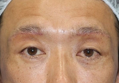 新宿ラクル美容外科クリニック 山本厚志 眉下切開法 手術後1週間目