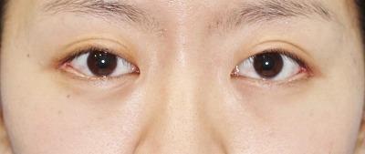 新宿ラクル美容外科クリニック 山本厚志 「目尻切開」 手術後1ヶ月目