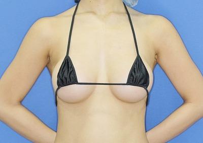 新宿ラクル美容外科クリニック 山本厚志 「Motiva(モティバ)エルゴノミクス」豊胸術 手術後3ヶ月目