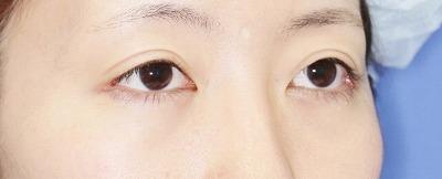 新宿ラクル美容外科クリニック 山本厚志 切らない眼瞼下垂 目尻切開 手術後2ヶ月目