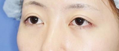 新宿ラクル美容外科クリニック 山本厚志 切らない眼瞼下垂 目尻切開 手術後1ヶ月目