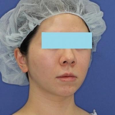 新宿ラクル美容外科クリニック 山本厚志 「ミントリフトⅡminiS flex(シークレットリフト)」手術後2ヶ月目