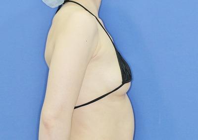 新宿ラクル美容外科クリニック 山本厚志 「Motiva(モティバ)エルゴノミクス」 手術前