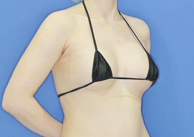 新宿ラクル美容外科クリニック 山本厚志 「Motiva(モティバ)エルゴノミクス」 手術直後