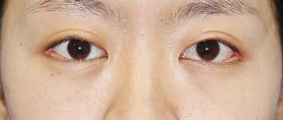 新宿ラクル美容外科クリニック 山本厚志 「目尻切開」 手術後2ヶ月目