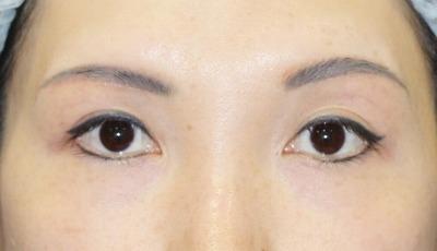 新宿ラクル美容外科クリニック 山本厚志 眉下切開 手術後2ヶ月目