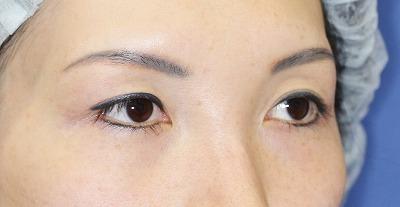 新宿ラクル美容外科クリニック 山本厚志 眉下切開 手術前